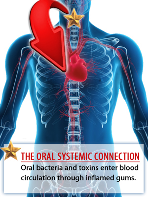 The Oral-Systemic Connection